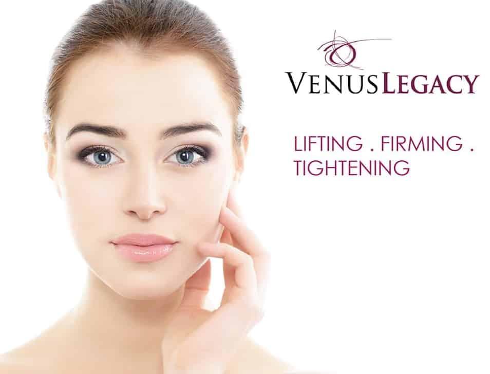 RF Venus Lift